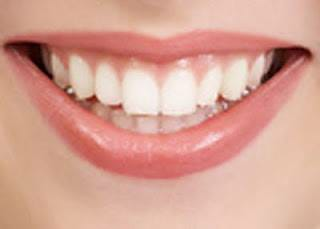 دكتور اسلام لملوم يحذر من استخدام مضمضة الاسنان بشكل مستمر
