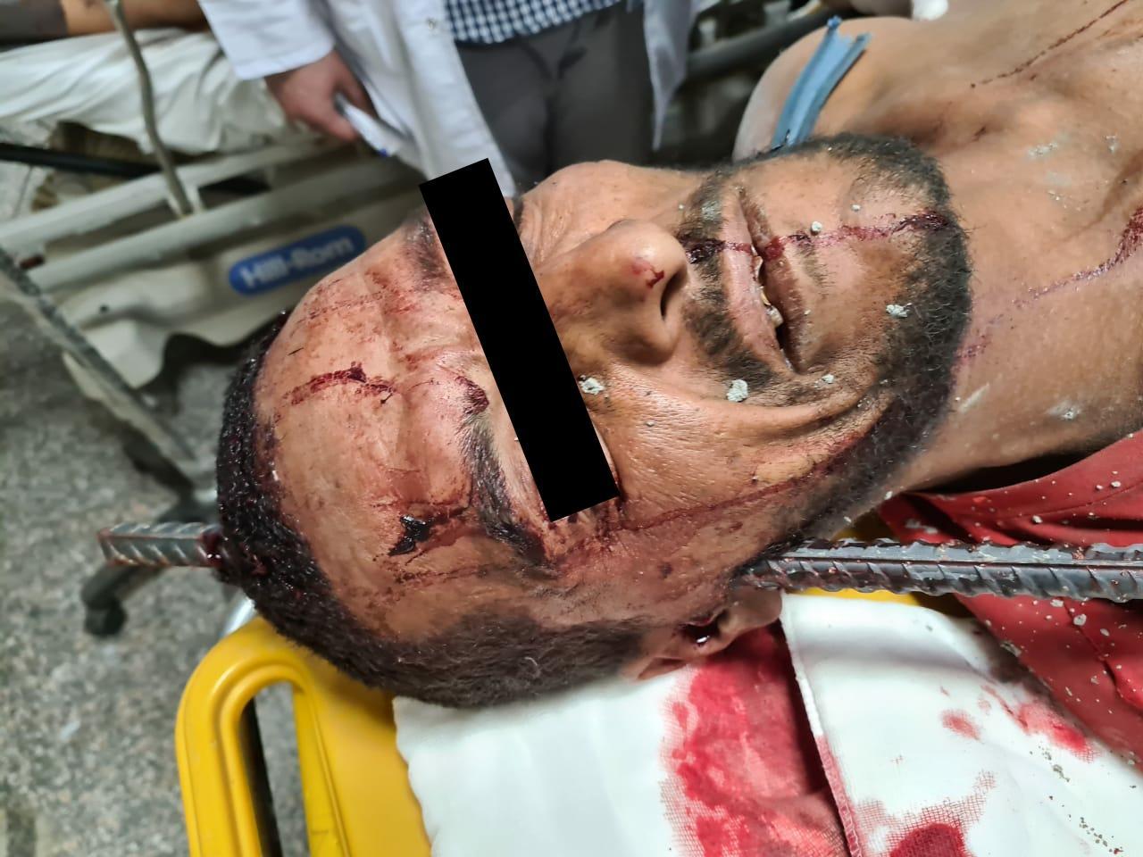 فريق طبى بجامعة أسيوط ينجح فى  استخراج سيخ حديد من جمجمة شاب ثلاثينى